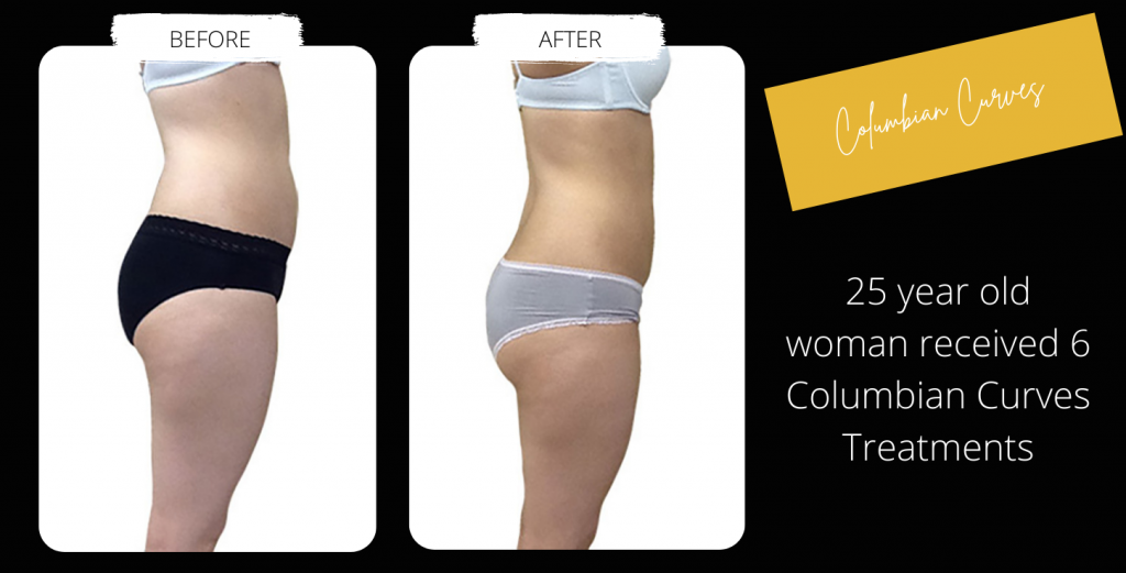 Body Contouring Before & After Image Gallery 6