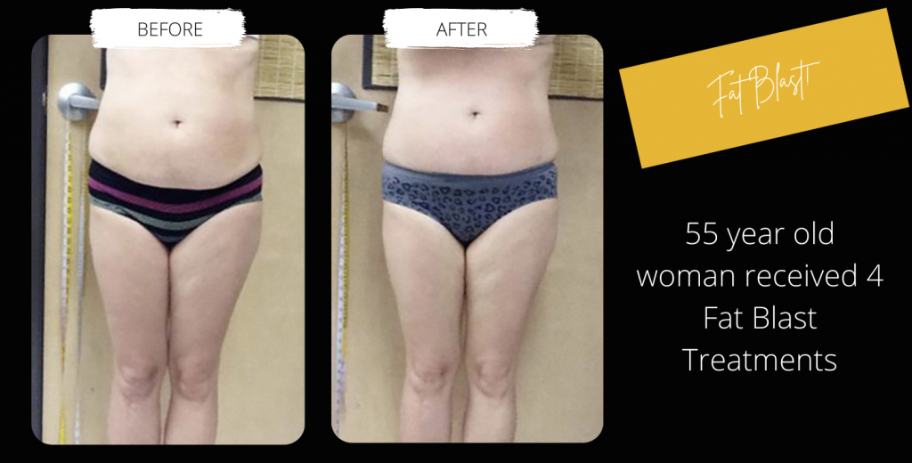 Body Contouring Before & After Image Gallery 5