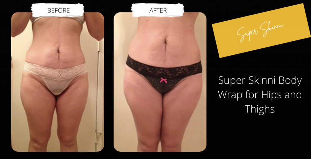 Body Contouring Before & After Image Gallery 4