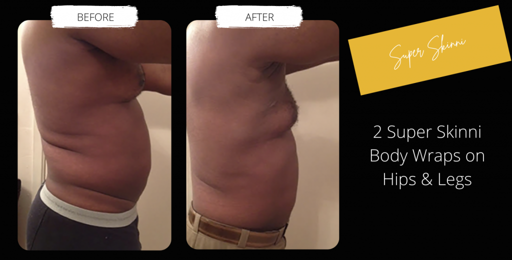 Body Contouring Before & After Image Gallery 7